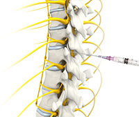 Caudal Epidural Steroid Injection