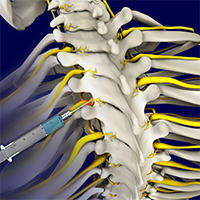 Nerve Root Injections